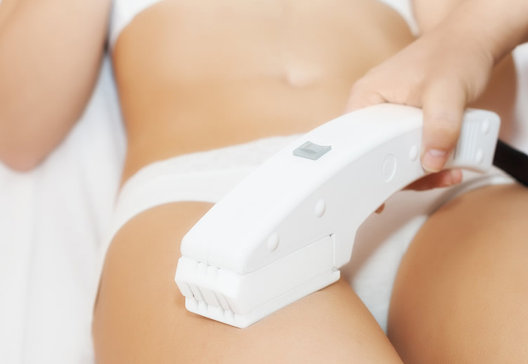 Image of a woman getting a laser hair removal treatment