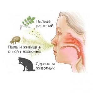Сильный аллергический кашель у ребенка что делать