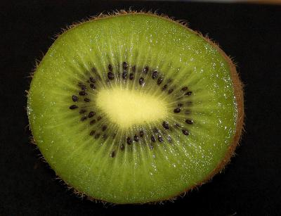 symptoms and causes of kiwi fruit allergy