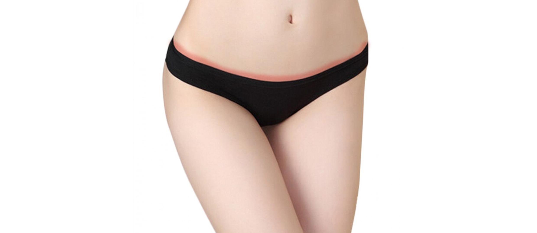 Underwear allergy.jpg