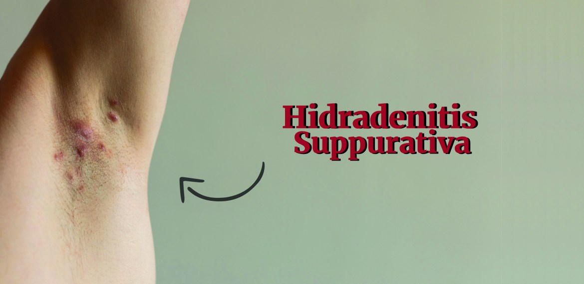 6 Misconceptions About Hidradenitis Suppurativa