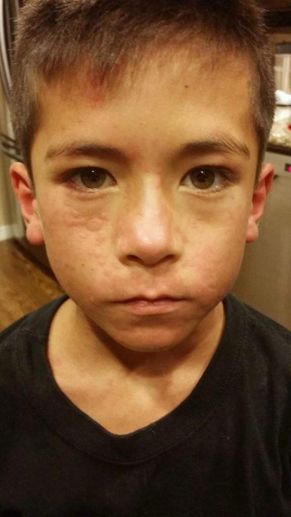 egg allergy 101 and allergic reaction