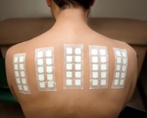 Patch Testing   Northern Sydney Allergy