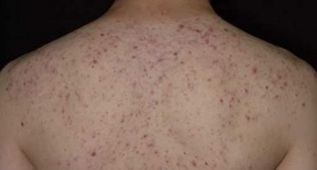 remove back acne scars