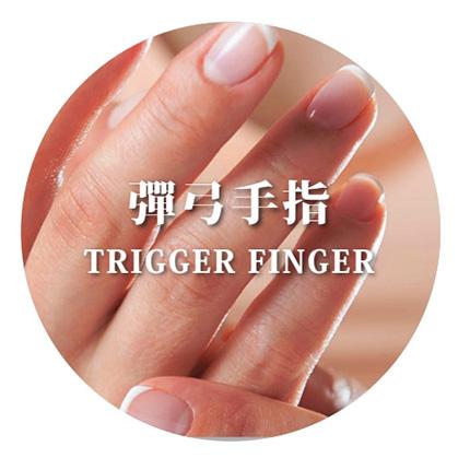 彈弓手指 - Alliance Medical Group