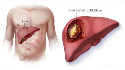 صورة توضيحية لسرطان الكبد