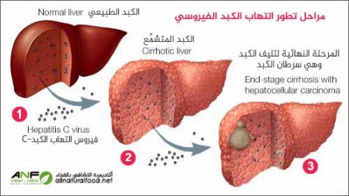 مراحل تطور سرطان الكبد