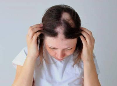 امرأة مصابة بداء الثعلبة في شعرها
