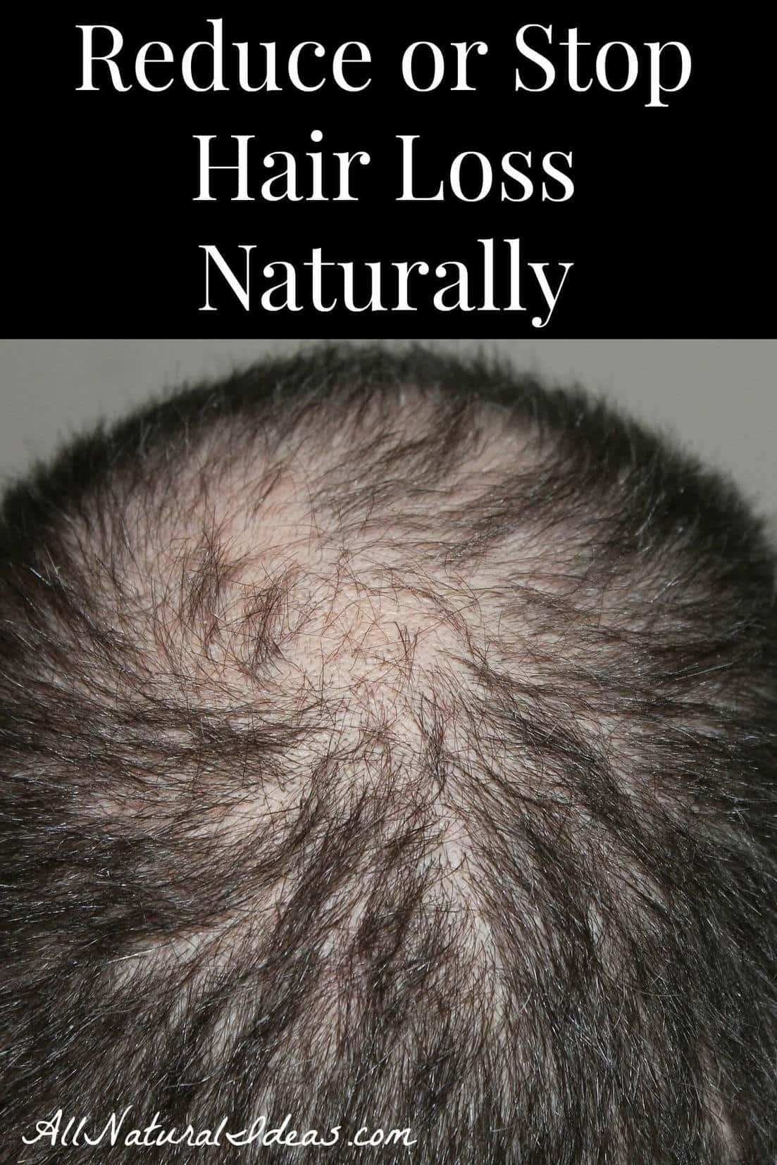 Reduce Hair Loss Naturally  All Natural Ideas