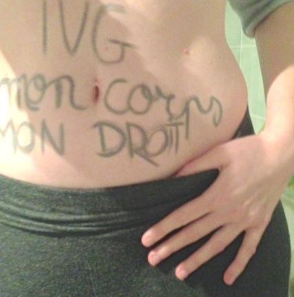 IVGmoncorpsmondroit