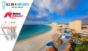 Dental Implants in Cancun!
