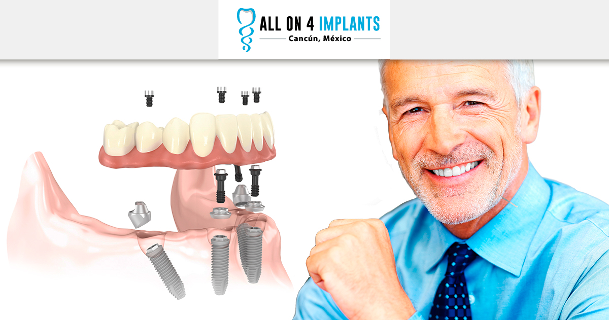 All-on-4 dental implant answers