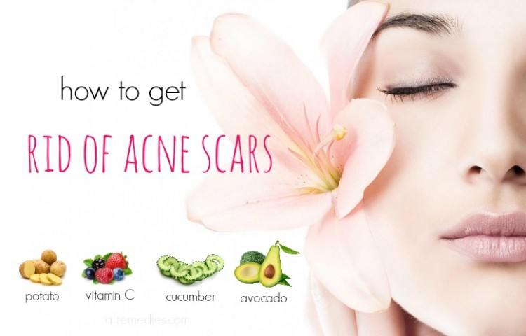 38 tips on how to get rid of acne scars fast and naturally