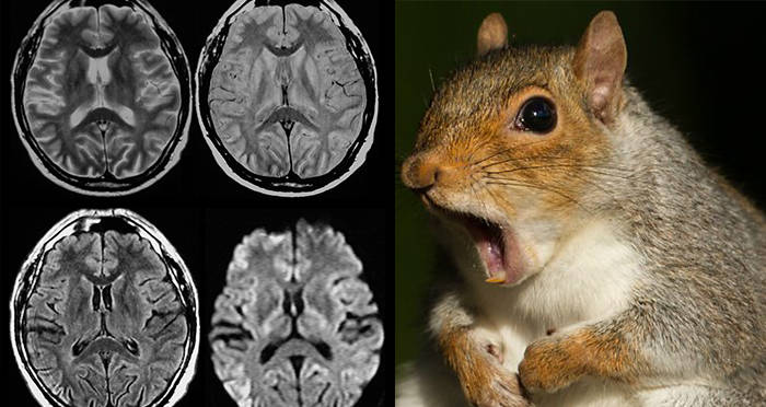 Eating Squirrel Brains May Have Given This Man Mad-Cow ...