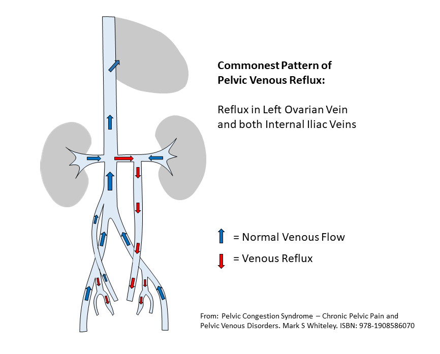 diagram of the common patterns of pelvic venous reflux