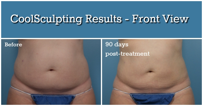 Coolsculpting Part 3 The Results All Things Fadra