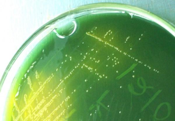 Vibrio cholera