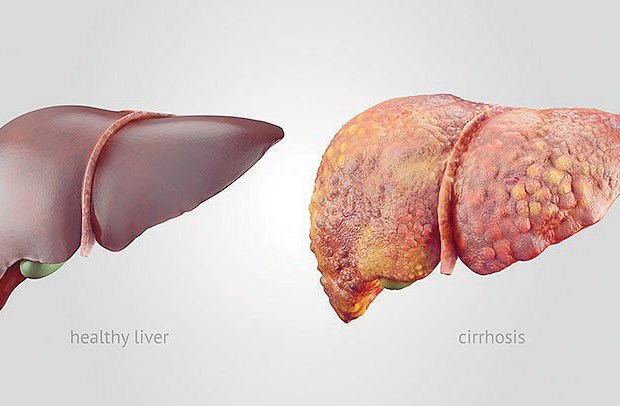 Liver Cirrhosis in Nigeria; Causes, Treatment & Natural Remedies