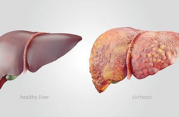 Liver Cirrhosis in Nigeria; Causes, Treatment & Natural Remedies