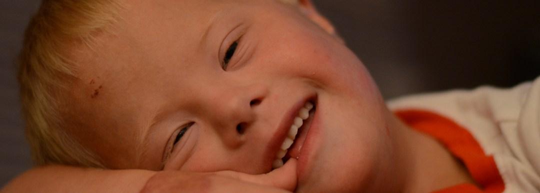 21 de març: dia mundial de la síndrome de Down