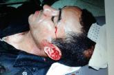 بالصور… الأمن يحصي جرحاه ومصابيه بحجارة بلطجية الحراك بالحسيمة