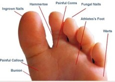 some-common-foot-problems
