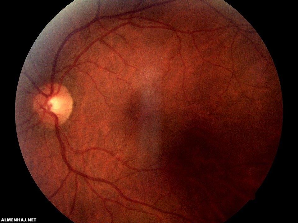 ما أسباب التهاب عصب العين وما العلاج