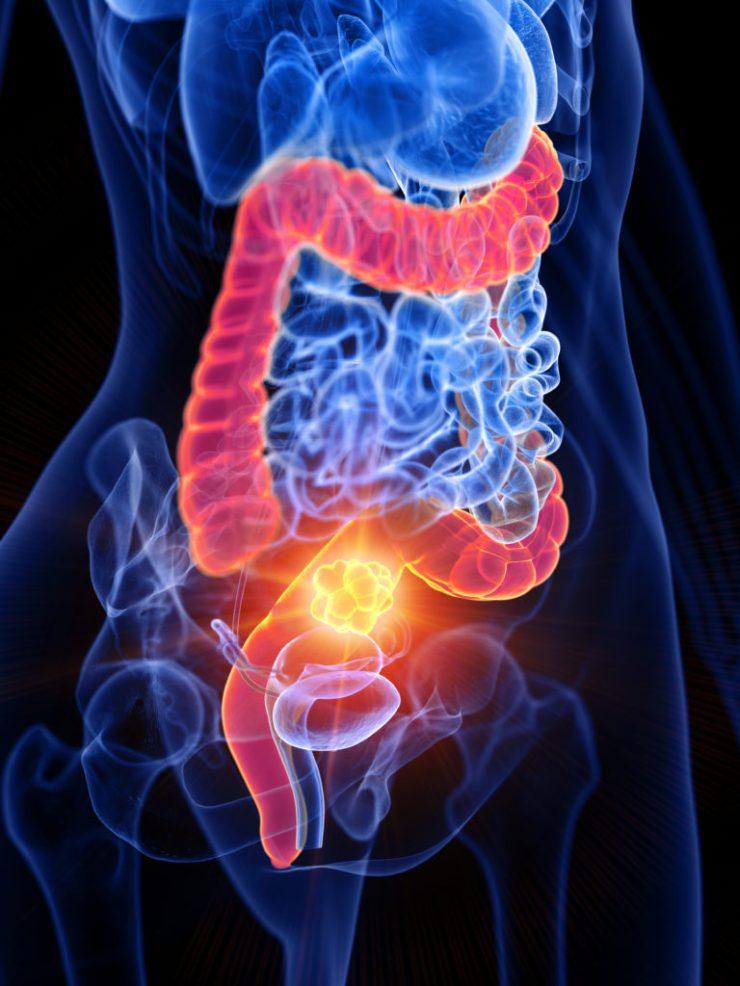 Ulcerative Colitis Treatment in Thailand - Almurshidi Medical Tourism Agency - Hospitals in Thailand