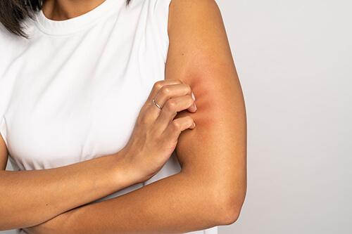 conséquences peau sèche