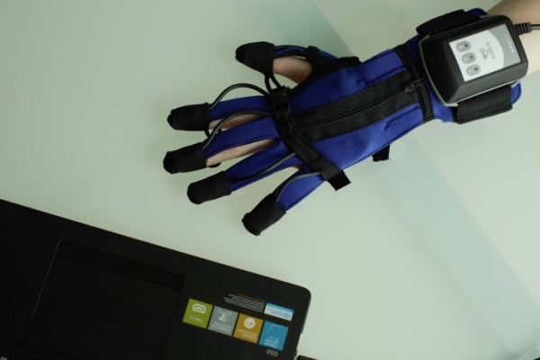 Anika rehab Glove_1