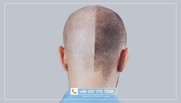 تكلفة زراعة الشعر في تركيا بالتقنيات الحديثة