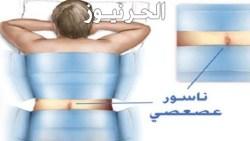 مضاعفات الناسور العصعصى وكيفية علاج الناسور العصعصي
