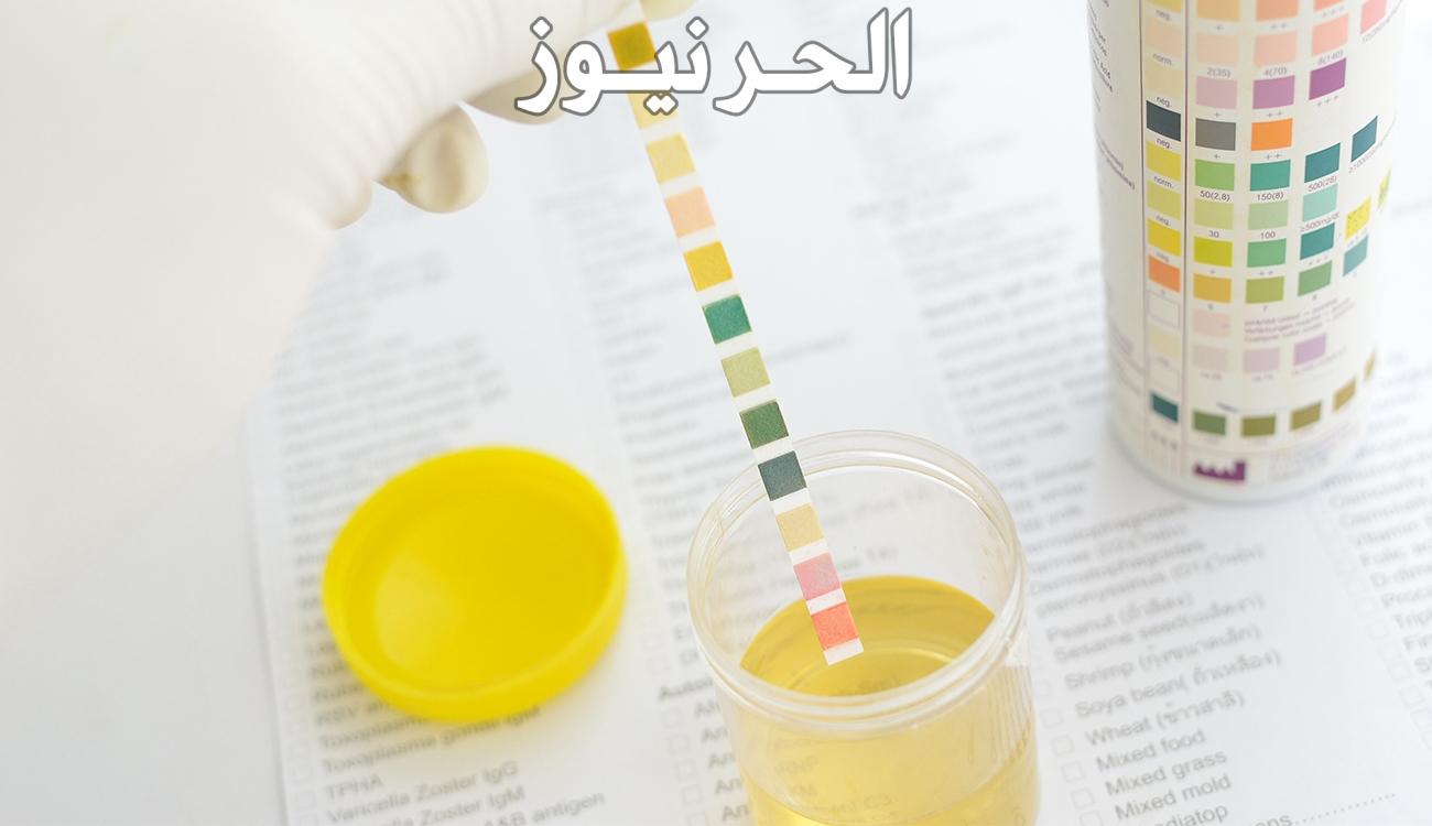 هل تغير لون البول مع الكلور يعني حمل وما هو اختبار الملح