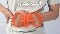 الفشل الكلوي المزمن وطرق العلاج قبل الغسيل الكلوي