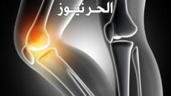علاج خشونة الركبة بالحقن و اهم الاثار الجانبية