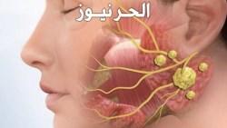 التهابات الغدد اللعابية وكيفية علاجه بالمنزل