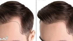دلائل نجاح عمليات زراعة الشعر ومؤشراته