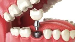 مدة زراعة الاسنان بعد الخلع