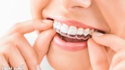 قوالب تبييض الاسنان واهم المخاطر والاضرار
