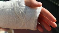 تفسير حلم أني اقطع يدي في المنام