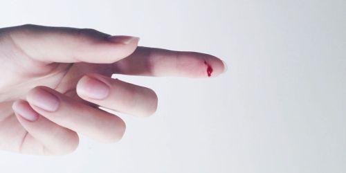 تفسير حلم الجرح في الساق بالمنام