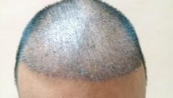 تفسير رؤية إزالة الشعر من الجسم في المنام