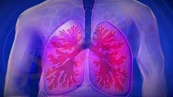 تفسير حلم رؤية مريض الرئة في المنام