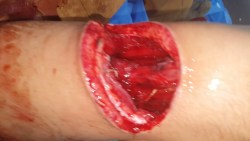 تفسير رؤية الجرح في الأصبع بالمنام