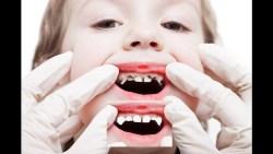 افضل مستوصف اسنان للاطفال في الرياض