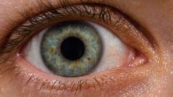 تفسير رؤية الميت بعين واحدة في المنام