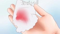 تفسير رؤية الدم في المنام يخرج من شخص اخر
