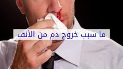 تفسير حلم خروج الدم من أنف الميت في المنام