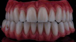 للحفاظ على اسنان بيضاء استخدم فرشاة الأسنان الكهربائية