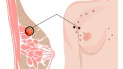 اعراض سرطان الثدي في سن العشرين
